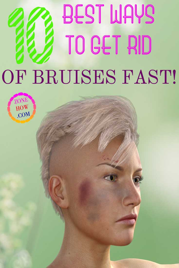 How to get rid of a bruise at home in one day